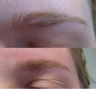 Eye Brow Scar and After