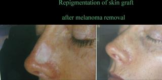 Repigmentation After Melanoma Removal