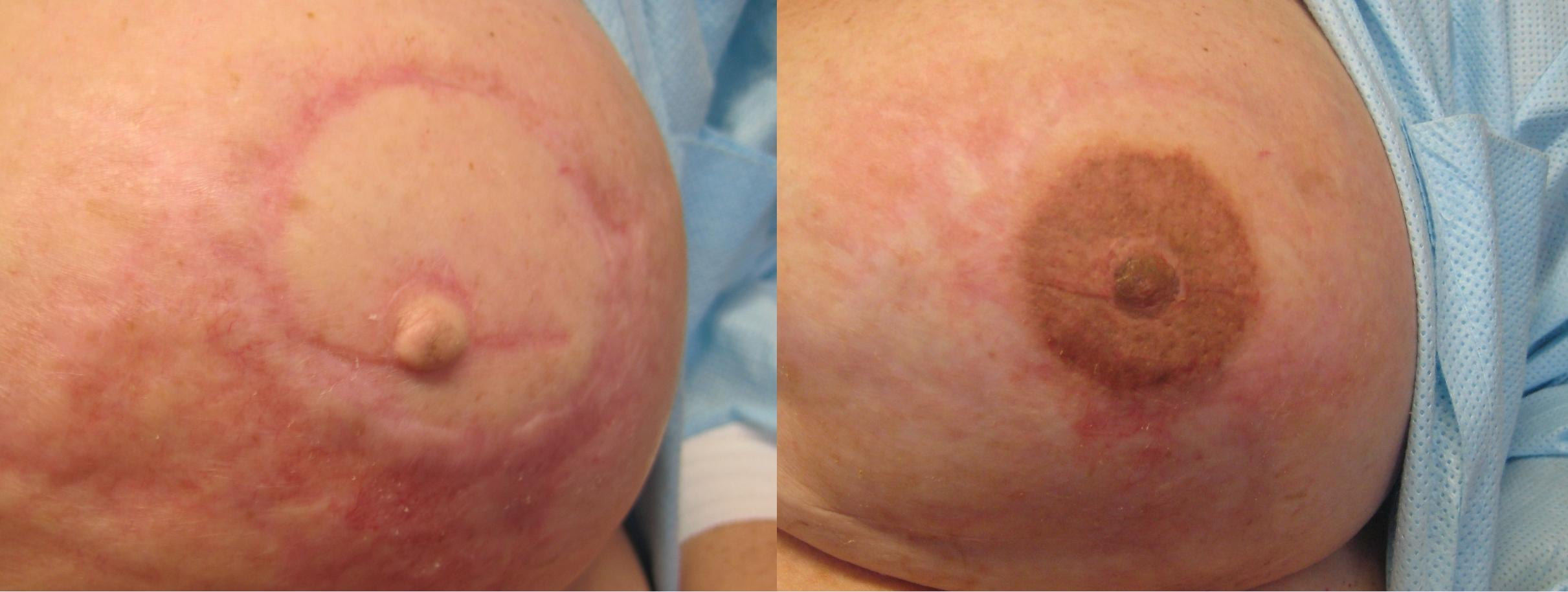 heavy scarring after mastectomy after repigmentation